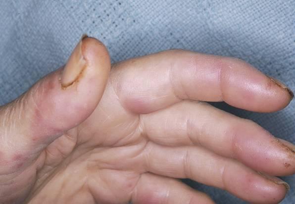 endocarditis 4 lesion en mano
