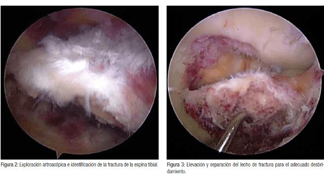 artroscopia e identificación de fractura