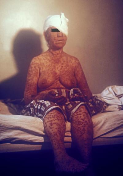 Este foi um paciente infectado com varíola durante uma epicemic no Kosovo, na Iugoslávia em março e abril de 1972. CDC/ Dr. William Foege. ID#:3220
