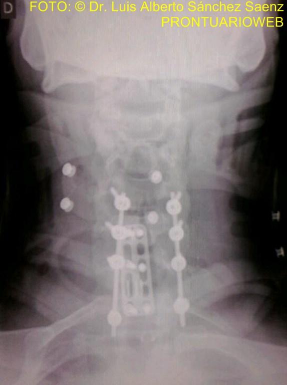 traumatismo vertebro medular - prontuarioweb